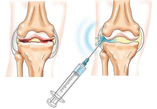 Liigeste ja lihaste geelid Artrosi ravi kinnitus