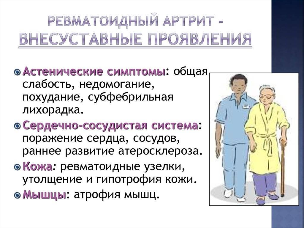 Asd-2f liigeste ravi