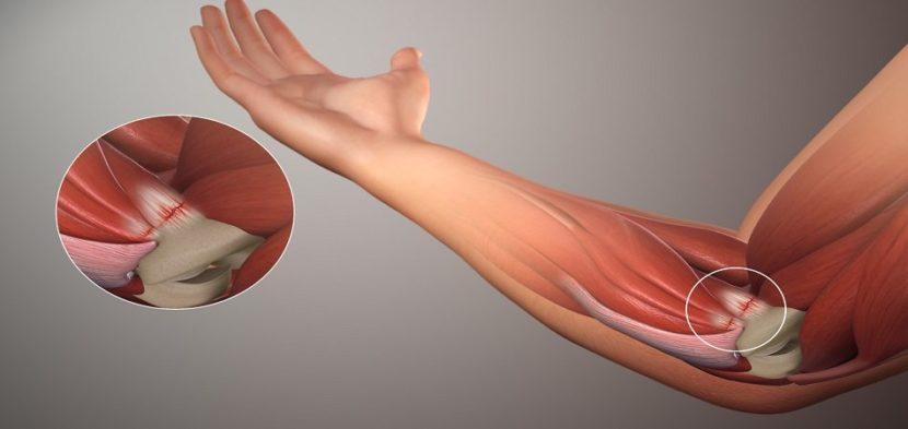 Salvi liigeste ravis Uhise valu meditsiinilised salvid