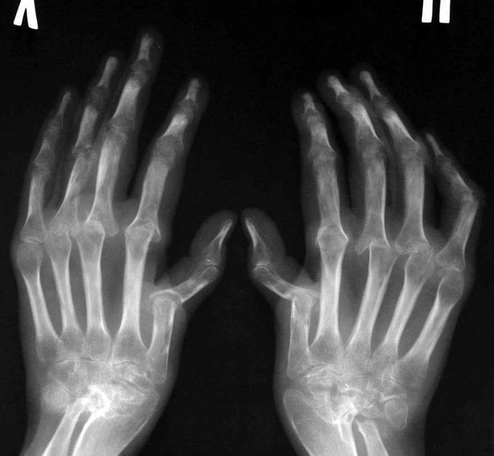 Kes toodeldi artroosi Artriit 2 kraadi olauhendust