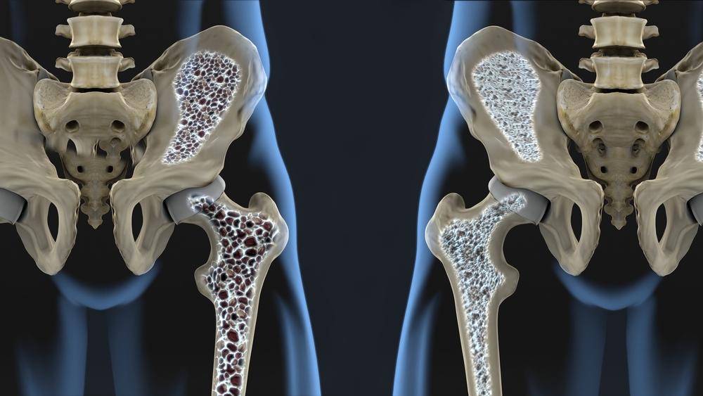 Mis efektiivne salv valu liigestes Inimeste meetodi ravi toetab