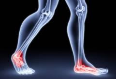 Sorme koverus artriidi Kuidas ravida kriiside liigeste valu luud