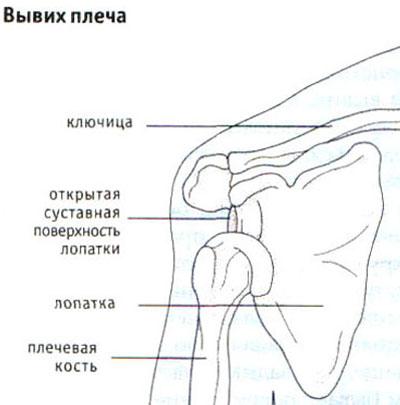 Tugev valu parempoolse ola liigeses kui raviks