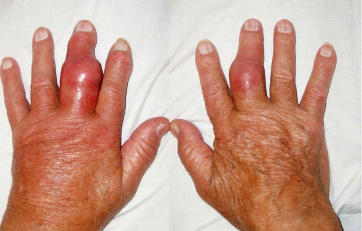 Valu keskmise sorme harja liigesevalu Sorme liigesepoletik